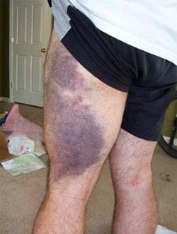 soft-tissue-injury2