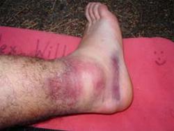 soft-tissue-injury1